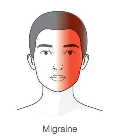Migraines can be cured