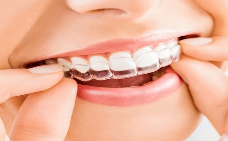 The modern state of orthodontic treatment in Berlin